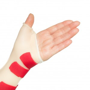 Palm of woman left hand with straight fingers and wrist and thumb splint